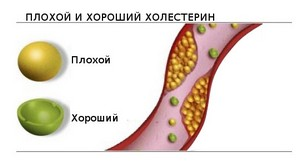 Анализ крови холестерин норма у женщин таблица