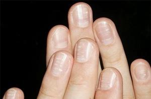 Не жалейте время для себя и для красоты своих рук!