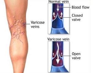 Варикозное расширение вен. Фитотерапия и лечебная гимнастика при варикозе