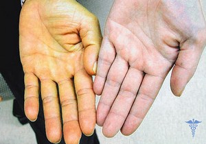 По оттенку кожи можно даже сказать, каких заболеваний вам следует опасаться.