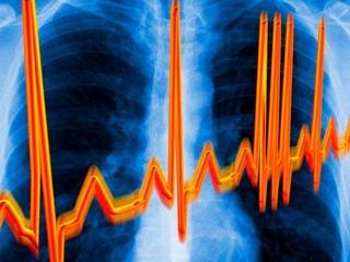 Чем опасна аритмия: симптомы, профилактика, первая помощь при аритмии