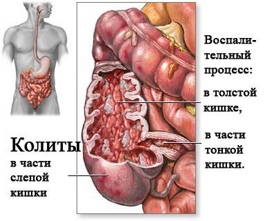 Как лечить воспаление кишечника и гастрит