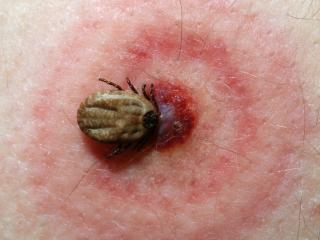 Боррелиоз, или болезнь Лайма: симптомы, лечение