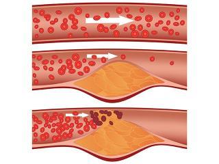 Атеросклероз. Народные методы лечения атеросклероза