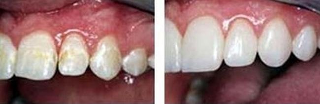 Гипоплазия эмали – это заболевание зубной эмали, которое может развиваться в любом возрасте, как у взрослых, так и у детей.