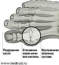 Подагра. Диета при подагре. Народные методы лечения подагры