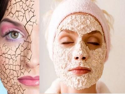 Уход за лицом с проблемной сухой кожей