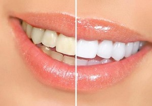 Полезные продукты для красоты и здоровья зубов