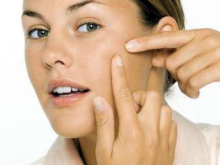 Косметические средства для лечения угревой сыпи и прыщей