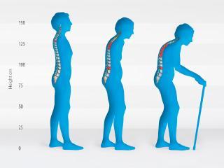 Возрастные изменения у женщин - Снижение плотности костей