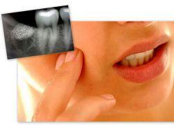 Гидроцефалия лечение народная медицина